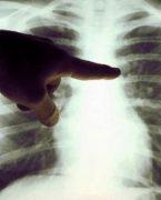 'Akciğer kanserinde tedavi başarısı'