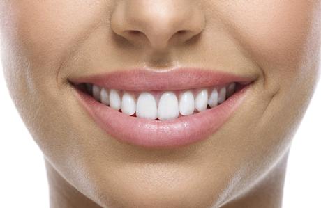 beyaz dişler 3